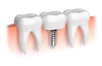 Woodstock GA Tooth Replacement Dentists